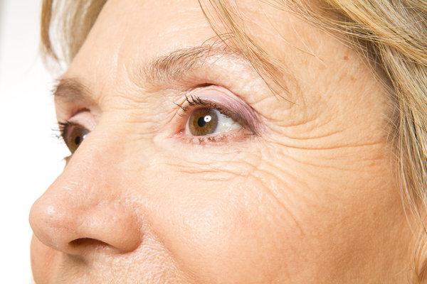 Health&Beauty remove age spots